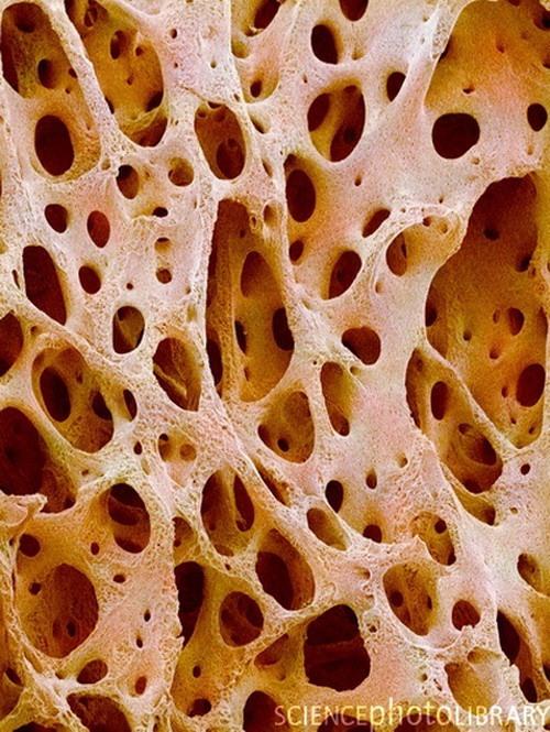 костная ткань под микроскопом фото